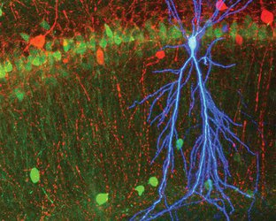 Neurons in a mouse brain