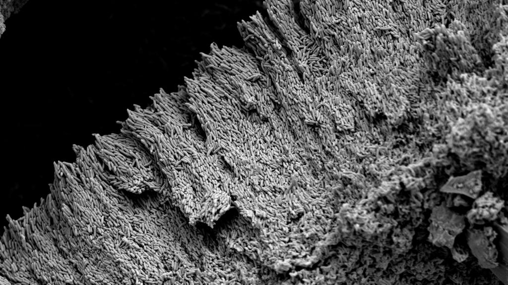 SEM image of Geobacter biofilm
