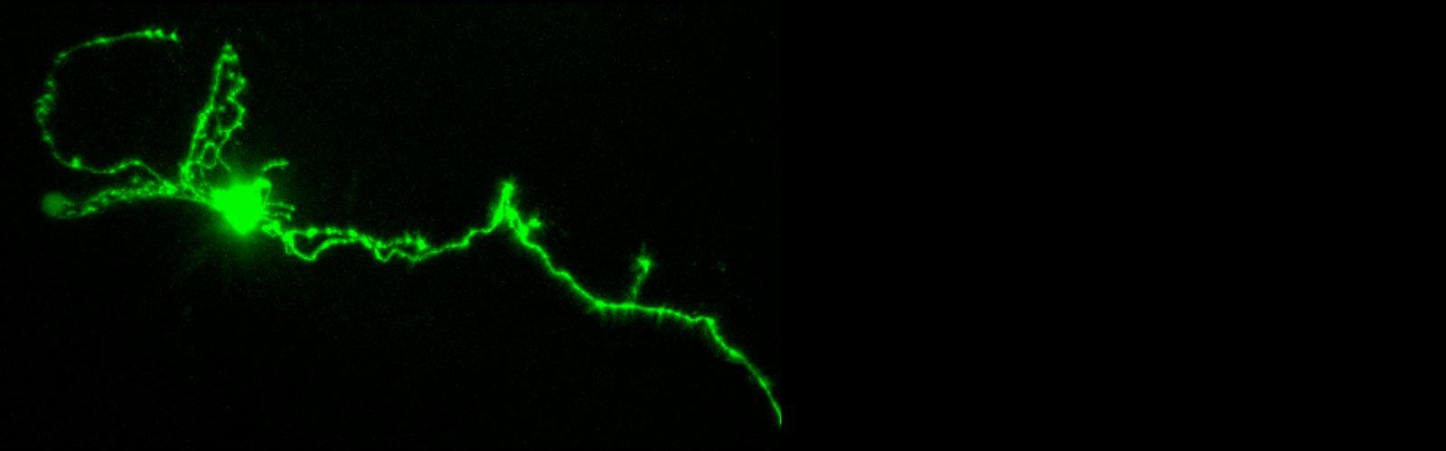 A larval zebrafish Hcrt neuron