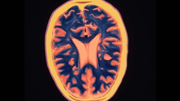 An MRI scan of a brain from a person with multiple sclerosis.
