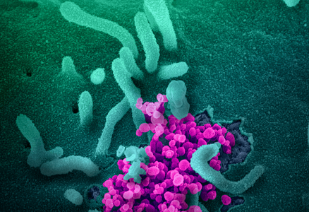 transmission electron microscope image of SARS-CoV-2 virus particles emerging from the surface of cells