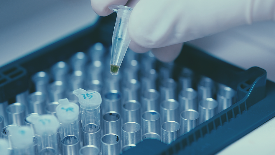 Gloved hand inserting a sample into a tray of samples in a lab